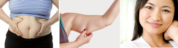 Khi nào thì nên hút mỡ toàn thân không phẫu thuật