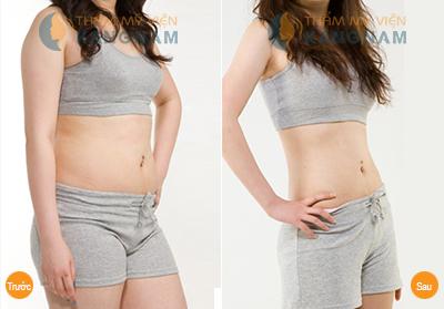 Cách loại bỏ mỡ bụng đảm bảo tuyệt đối an toàn
