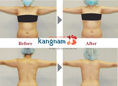 Kết quả khách hàng hút mỡ tại Kangnam9