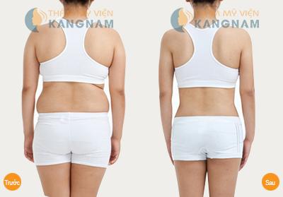 Làm thế nào giảm nhanh mỡ bụng để lấy lại thân hình đẹp?