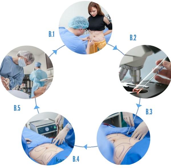 Quy trình hút mỡ toàn thân không phẫu thuật an toàn tại Kangnam
