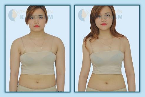 Nhận định của chuyên gia về 3 cách giảm mỡ bụng nhanh cho nữ6