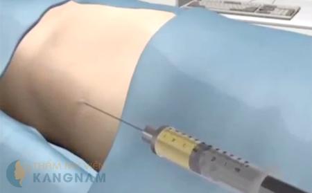 Hút mỡ bắp tay bắp chân bằng Laser Lipo liệu có an toàn không?2