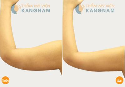 Kết quả hút mỡ bắp tay công nghệ Laser Lipo tại Kangnam