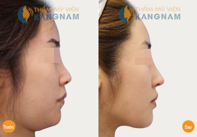 Kem làm tan mỡ mặt có thực sự hiệu quả? 5