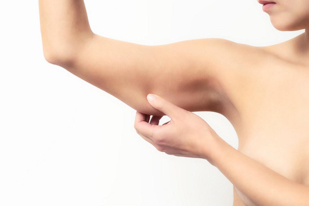 Băn khoăn hút mỡ bắp chân bắp tay có an toàn không