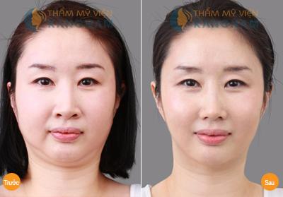 Chuyên gia giải đáp: hút mỡ mặt có an toàn không?67
