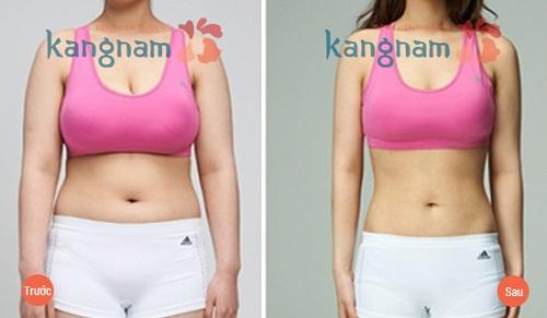 Tại Kangnam Hút mỡ bụng có hiệu quả không