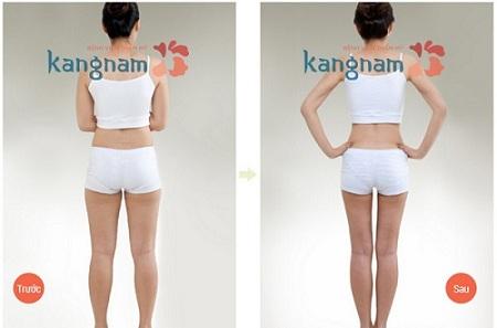 Hút mỡ đùi an toàn, hiệu quả tại Kangnam