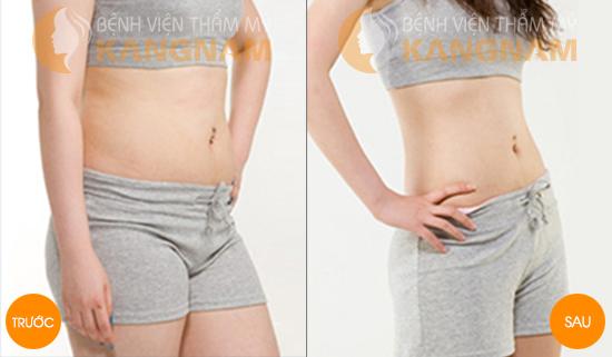 Vùng da bụng sau khi hút mỡ có bị gồ ghề, chảy xệ không?89