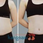 Giá hút mỡ bụng không phẫu thuật là bao nhiêu?