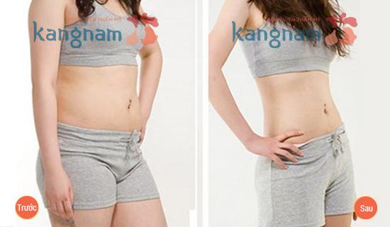 Kết quả hút mỡ tại Bệnh viện thẩm mỹ Kangnam1