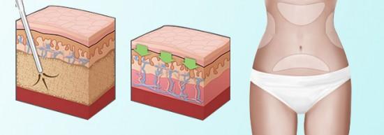 Hút mỡ bụng nội soi có hại không