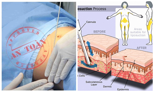 Giảm mỡ Laser Lipo có thể giảm được mỡ trên từng vùng cơ thể1