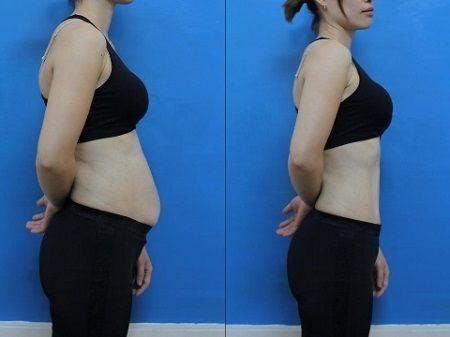Image result for phẫu thuật hút mỡ bụng dưới