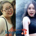Kết quả khách hàng hút mỡ tại Kangnam