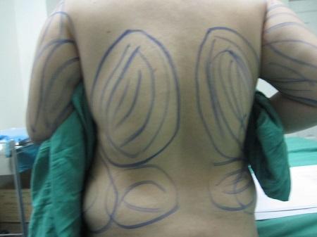 Hút mỡ lưng 5