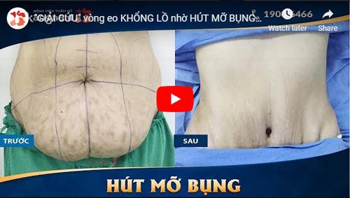Hút mỡ bụng không phẫu thuật Laser Lipo 1