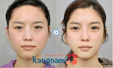Kết quả khách hàng hút mỡ tại Kangnam8