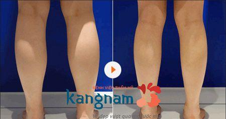 Kết quả khách hàng hút mỡ tại Kangnam4