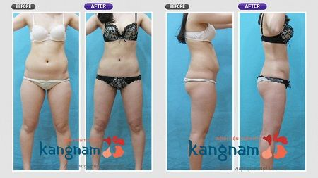 Kết quả khách hàng hút mỡ tại Kangnam11