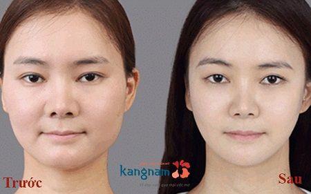 hút mỡ mặt tại kangnam